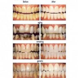 28pcs White Effects Dentaire Whitestrips Advanced Dents Blanchissant Bandes Stripes